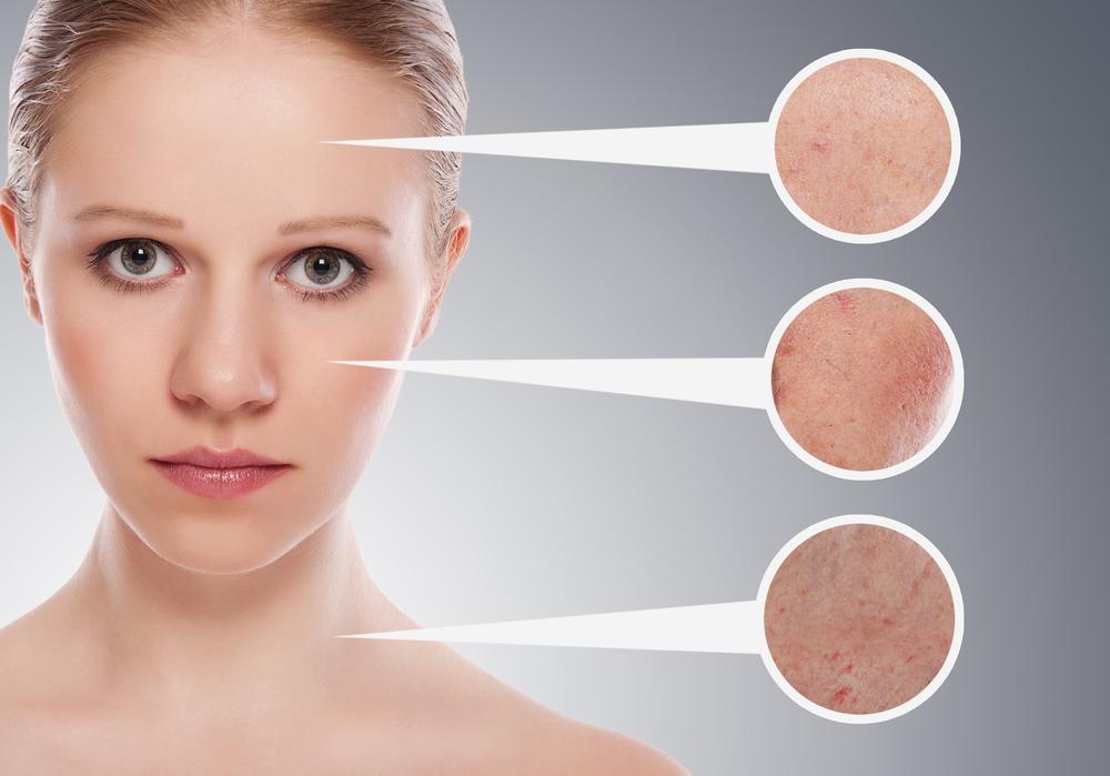 A alergia em uma cara e um pescoço nota em